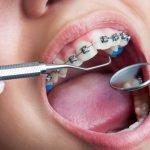 Orthodontics-Image
