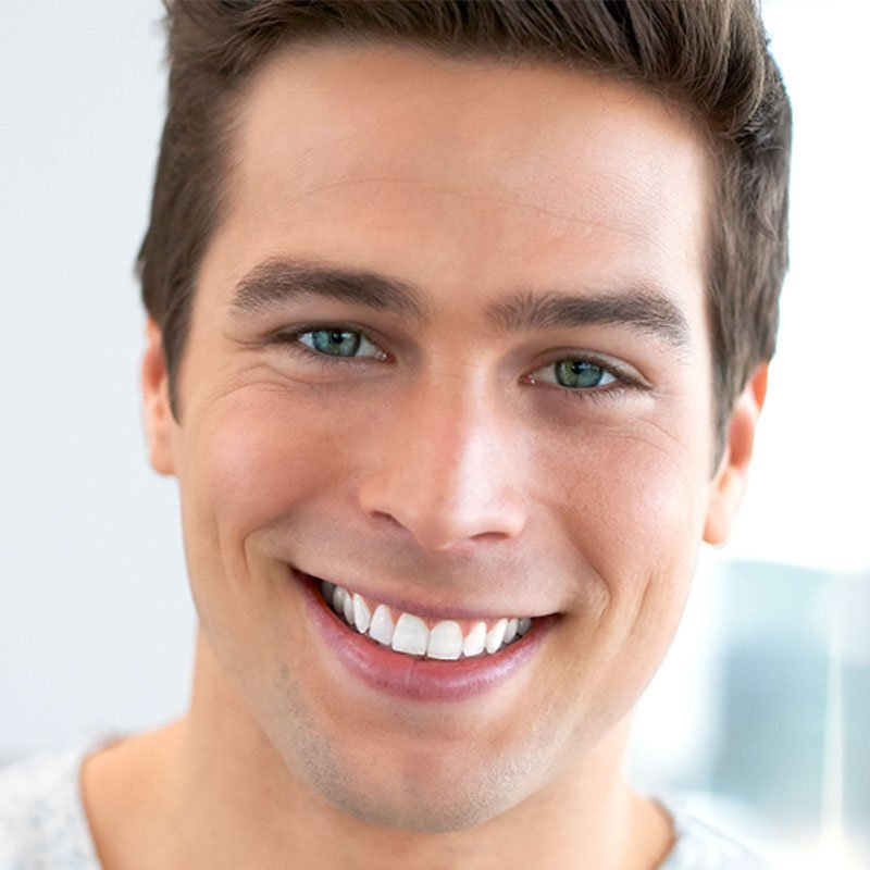 Teeth-Whitening-Newcastle