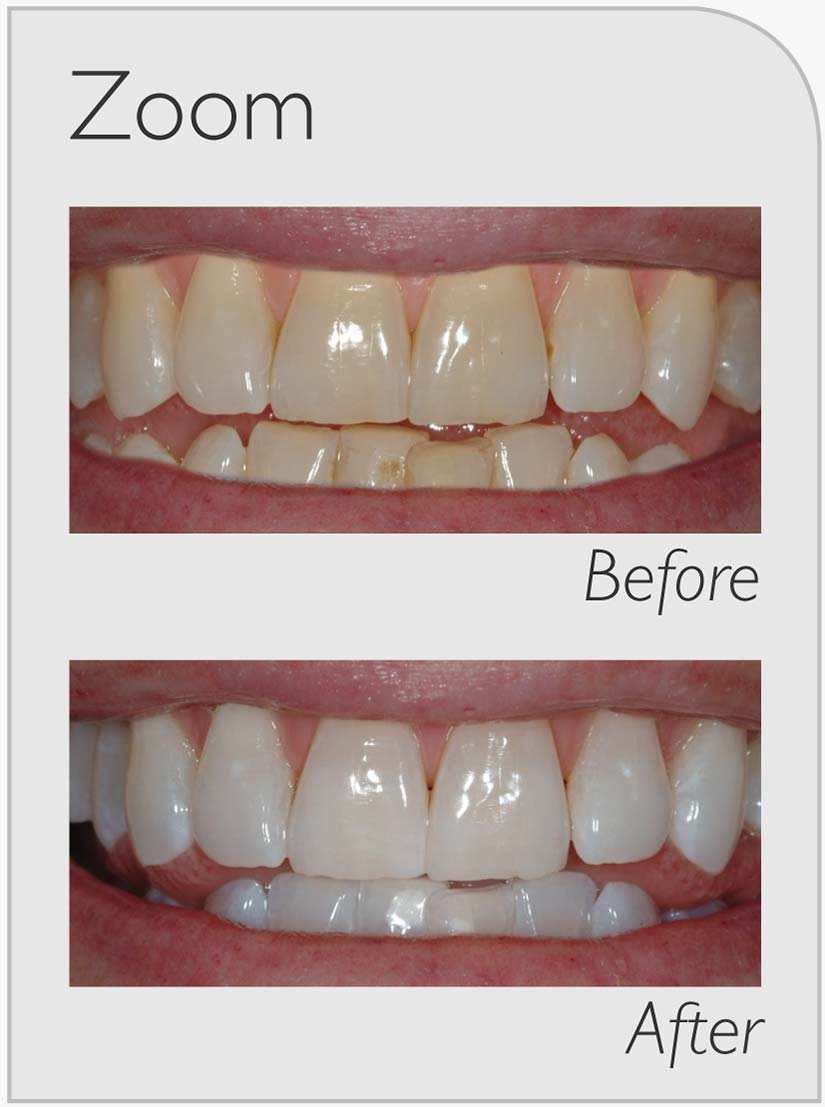 Zoom-Whitening-Before-&-After