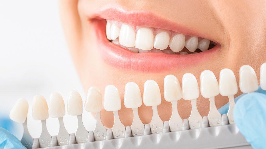 Bright teeth