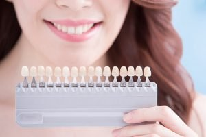 woman-getting-teeth-whitening